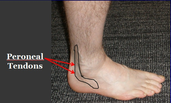 Location of pain and swelling in Peroneal Tendonitis